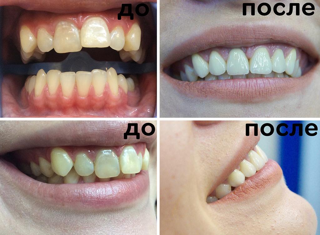скученное положение зубов, нарушение эстетики