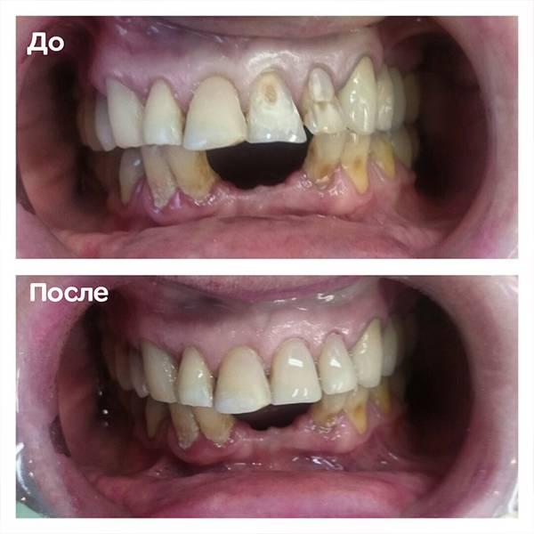 Эстетическая реабилитация. Замена пломб на зубах 21,22 на этапе протезирования