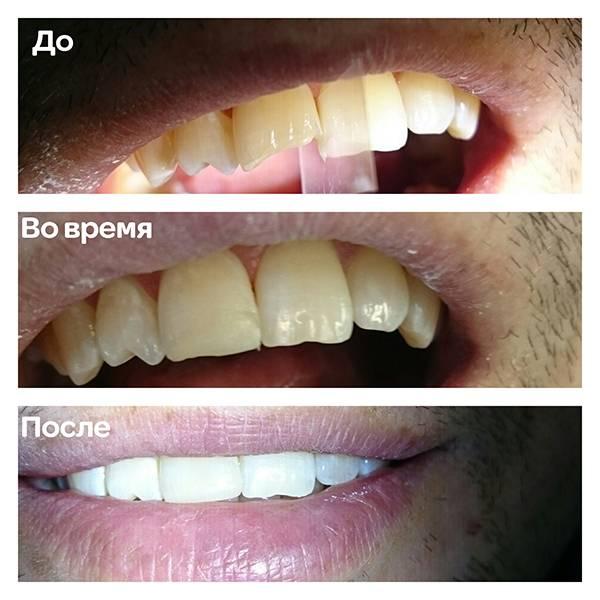 Зуб 11. Восстановление режущего края. СТК, краски.