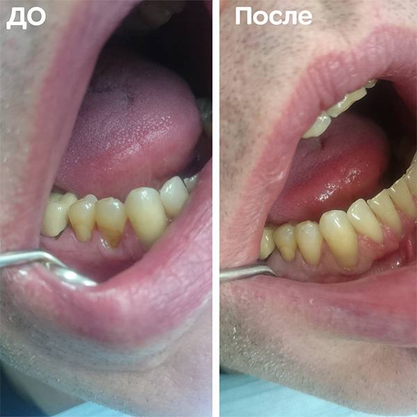 Зуб 44. Клиновидный дефект