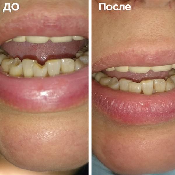 Дефект эмали. Зуб 41