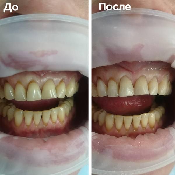 Восстановление клиновидных дефектов. Зубы 11,22