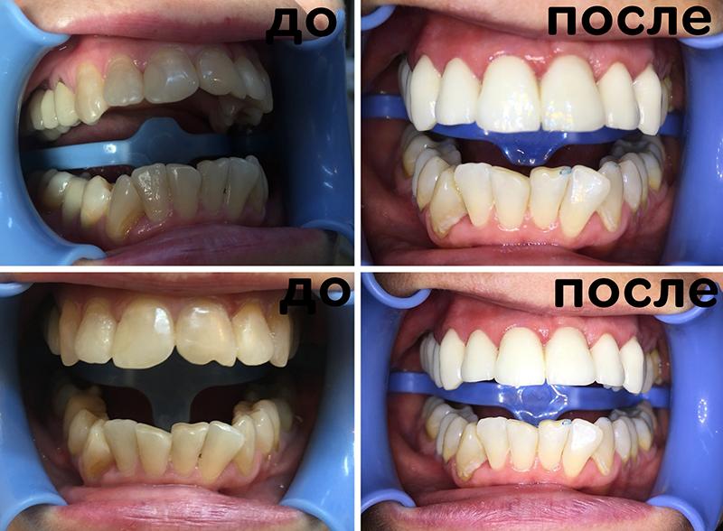 Дефект коронок зубов