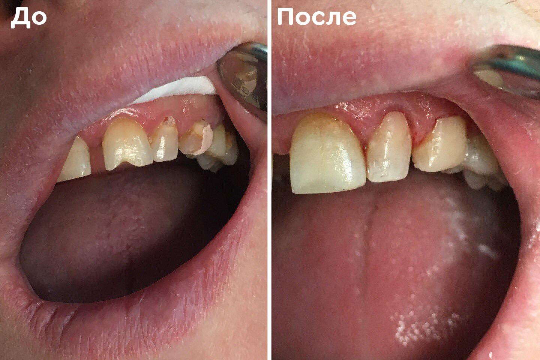Дефект твёрдых тканей зуба